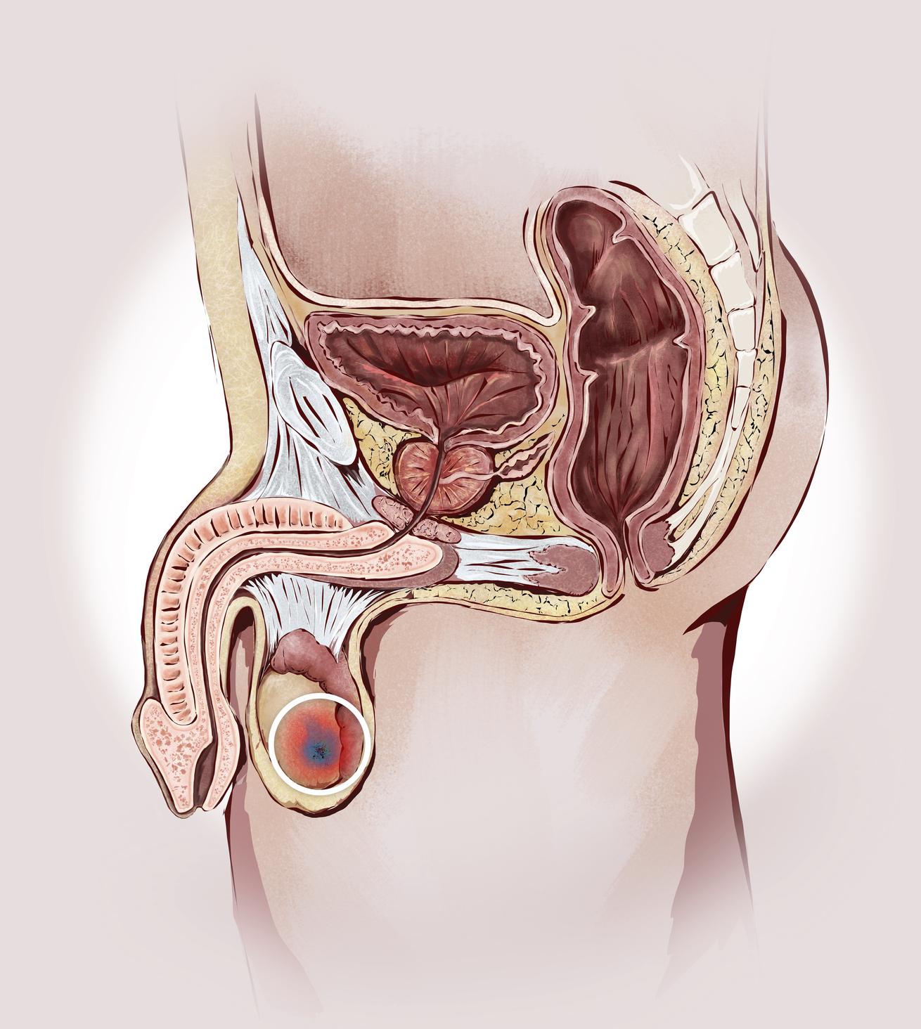 Medicare y cirugía de próstata