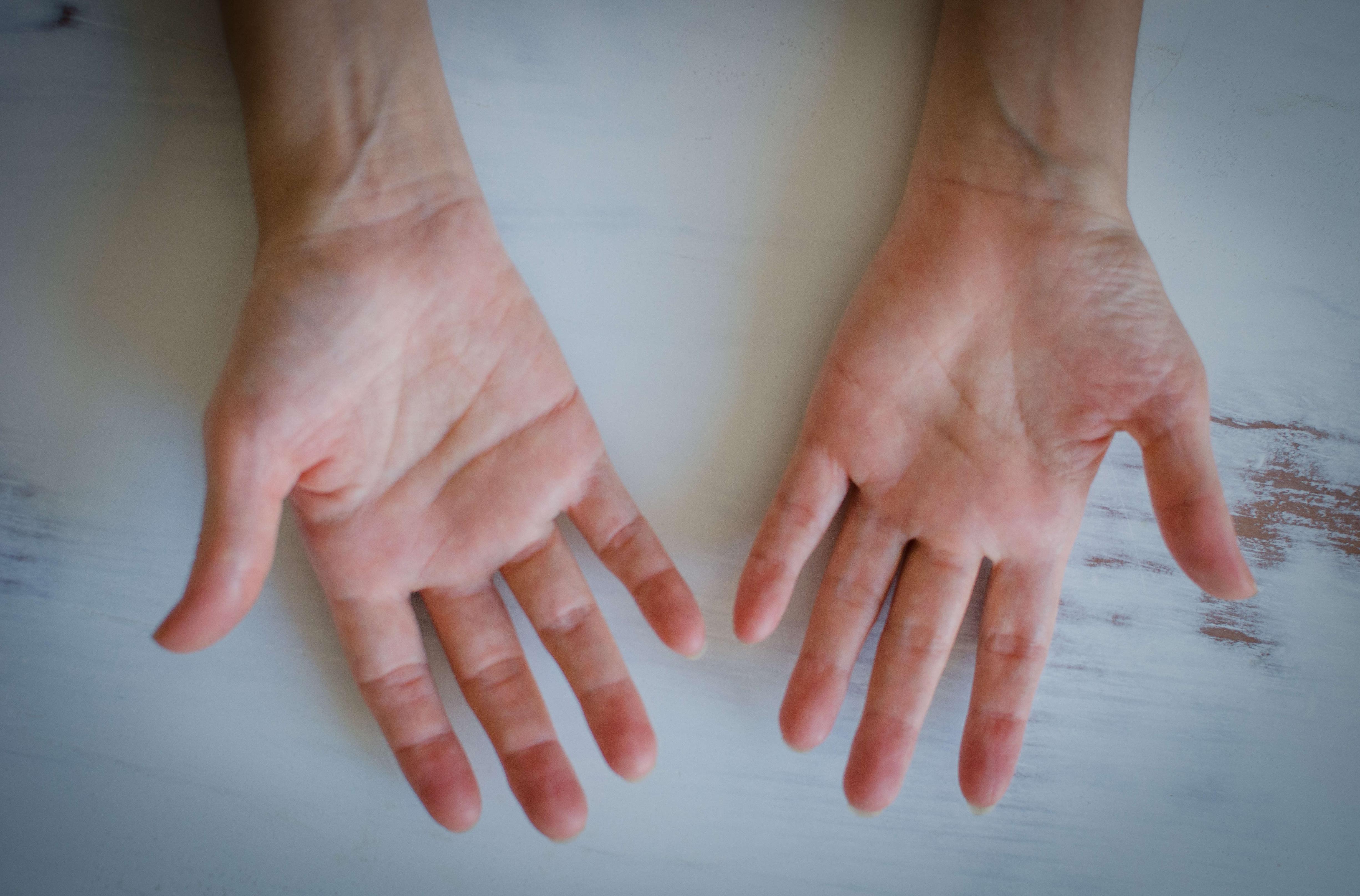 estallar los dedos causa artritis