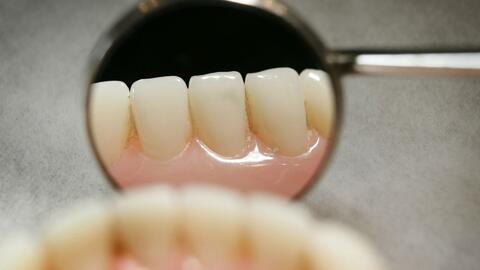 ¿Cómo mantener los dientes blancos?