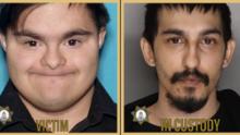 El sospechoso de causar la muerte de un hombre con síndrome de Down es su propio hermano, según autoridades