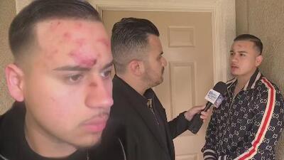 Cantante de regional denuncia haber sido víctima de brutalidad policial, pero las autoridades tienen otra versión de los hechos