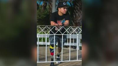 Perdió las piernas de niño durante unas vacaciones en EEUU, pero su fortaleza le permitió salir adelante