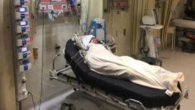 Reciben tratamiento en Texas dos menores que sufrieron quemaduras severas tras explosión de un ducto de gasolina en México