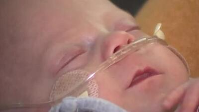 Sale de un hospital de Florida el bebé milagro tras nacer pesando apenas 1.2 libras