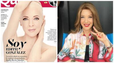 A un año de posar sin cabello, Edith González regresa a las telenovelas