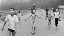 'La niña del napalm' lucha por brindar asistencia médica a menores con quemaduras