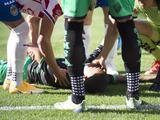 Ronaldo Prieto sale noqueado de la cancha por un 'balonazo' en la cara