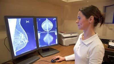 Nueva regulación exige a proveedores informar a las mujeres sobre estado de densidad mamaria