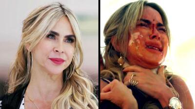 En fotos: el rostro perfecto de 'La Madame' quedó totalmente desfigurado