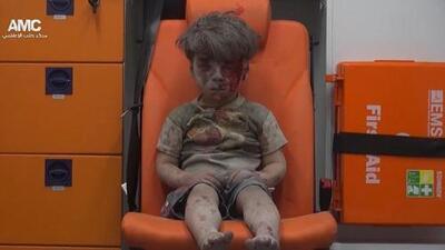 La imagen del niño de Alepo que habla del horror de la guerra en Siria