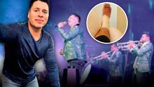 El vocalista de la Banda MS sigue lesionado, tras accidente ocurrido en enero
