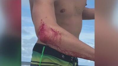 Nuevo ataque de tiburón en Florida: un surfista profesional fue mordido en el brazo