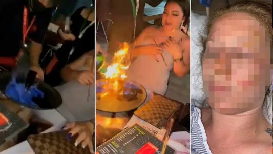 Turista recibe quemaduras de tercer grado en la cara tras accidente con bebida flamante en Cancún