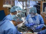 Cerca de un tercio de los pacientes hospitalizados por covid-19 desarrolla algún tipo de encefalopatía, según un estudio