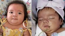 Con solo seis meses Janessa lucha para superar una enfermedad rara que afecta su sistema gástrico