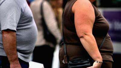 """""""No vamos a estar saludables sin hacer nada"""": Los consejos de un médico para combatir la obesidad"""