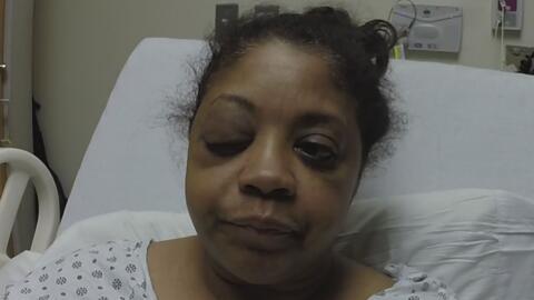 Una mujer está punto de perder un ojo tras ser atacada por dos personas en Queens