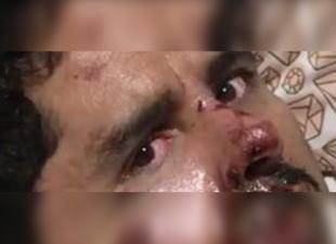 Su mirada lo dice todo: Larry Hernández muestra cómo tiene el rostro a un mes de su accidente
