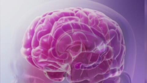 Anualmente aumenta el número de muertes por derrame cerebral, según estudio