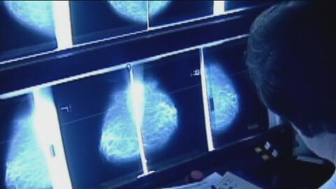 Científicos desarrollan una nueva prueba para detectar en 10 minutos la presencia de cáncer en pacientes