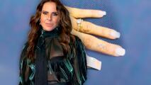 """""""No crean que estoy casada"""": Kate del Castillo muestra el trauma que sufrió en el dedo"""