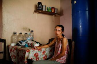 En fotos: esta venezolana desnutrida clama que la ayuda humanitaria llegue pronto