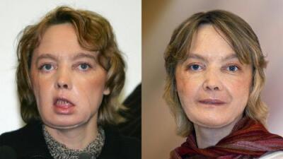 Falleció la primera receptora de un trasplante de rostro por complicaciones una década después de la operación