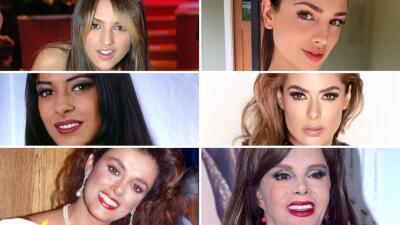 Las actrices que le han dicho sí a la cirugía