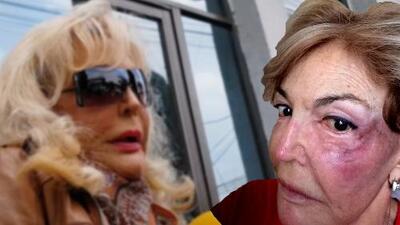 """""""Me puede matar"""": actriz Merle Uribe pide que la protejan de su hijo (ya no se considera su madre)"""