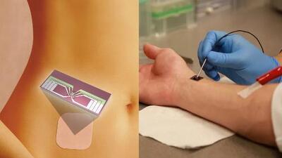 ¿Permitirías que tu hija adolescente se implante un chip anticonceptivo?