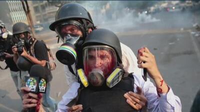 """""""Pensé que me iba a morir desangrado"""", dice reportero herido durante las manifestaciones en Venezuela"""