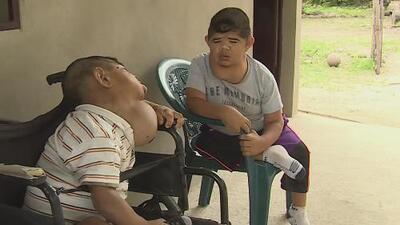 Estos dos hermanos nunca crecieron: son dos hombres atrapados en cuerpos de niños