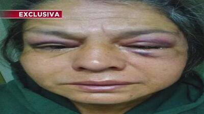 Mujer denuncia haber sido víctima de una brutal golpiza cuando iba a comprar un café