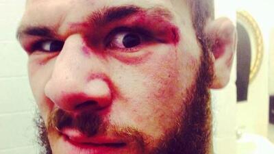Investigan el homicidio del luchador de MMA Aaron Rajman en su casa de Palm Beach