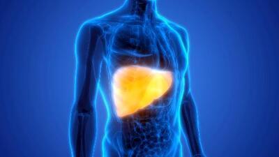 Silenciosa y peligrosa: conoce qué causa la enfermedad de hígado graso no alcohólico y cómo se puede evitar