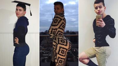 El joven australiano que quiere el trasero como Kim Kardashian
