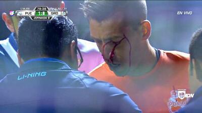 Golpe brutal sobre la cabeza de Vikonis