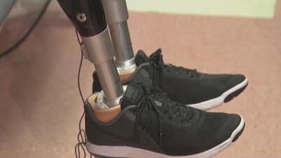 Sobreviviente del atentado en la Maratón de Boston le regaló prótesis a joven que perdió sus piernas