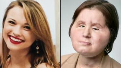 Tras quedar desfigurada al intentar suicidarse, una mujer es sometida a un complejo trasplante de rostro