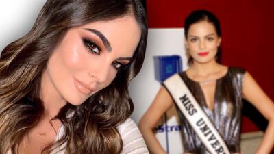 Ximena Navarrete confiesa si se ha hecho cirugías estéticas