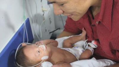 Una embarazada con muerte cerebral permaneció conectada para salvar a su bebé