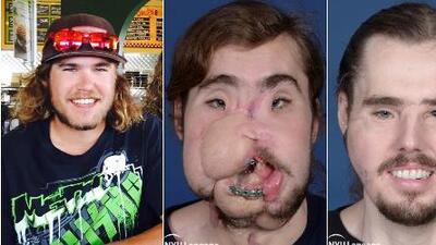 Un disparo le desfiguró el rostro cuando intentó suicidarse, ahora una increíble cirugía lo restauró casi a la perfección