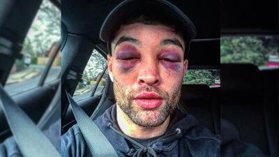 ¡Y eso que ganó! Boxeador británico luce irreconocible tras épica batalla arriba del ring