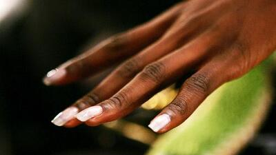 El Consultorio: Descubre lo que tus uñas revelan de tu salud