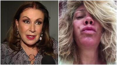 """Laura Zapata reacciona a un video de Cynthia Klitbo diciéndole """"cochina"""" y miren por qué"""