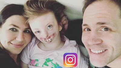 Muere #SweetSofia, la niña con malformaciones faciales que se convirtió en símbolo contra la discriminación