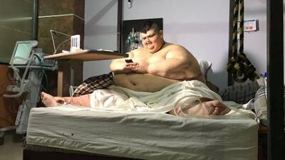 El hombre más obeso del mundo está en camino a alcanzar su peso ideal