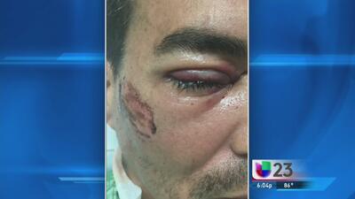 Padre de niña desparecida con su madre pierde un ojo por pistola taser