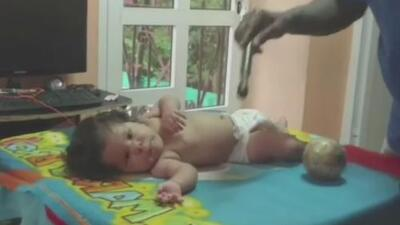 Compañía farmacéutica de EEUU ofrece ayuda a niña cubana que padece una extraña enfermedad