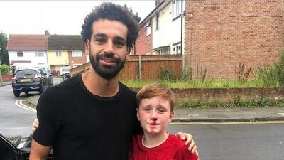 Un niño se rompe la nariz para tomarse foto con Mohamed Salah